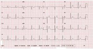 EKG vizsgálat azonnal, várakozás nélkül, EKG jogsihoz, sportorvoshoz